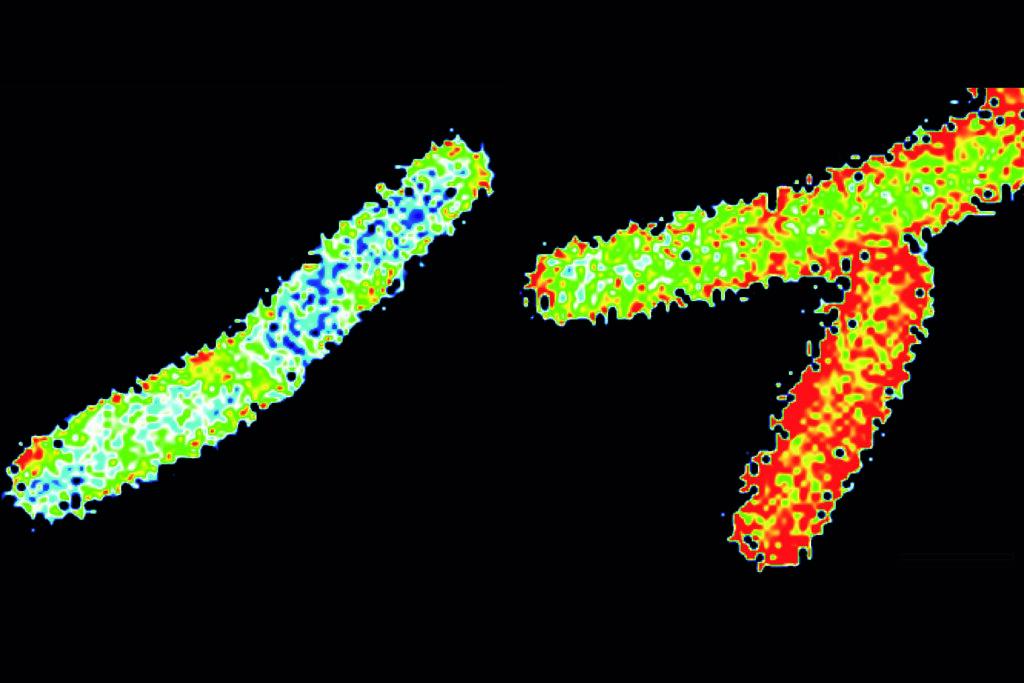 Comment les protéines régulent l'enveloppe extérieure des cellules bactériennes