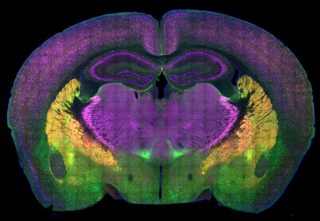 Des chercheurs sur l'autisme cartographient les circuits cérébraux de préférence sociale