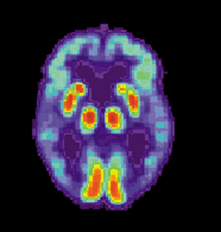 Des scientifiques découvrent le gène protecteur de la maladie d'Alzheimer et développent une plateforme de dépistage rapide