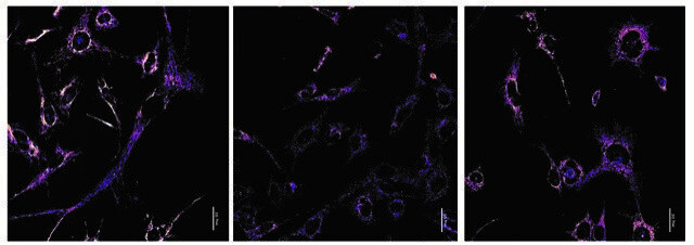 Des scientifiques découvrent le mécanisme de compétition entre les génomes mitochondriaux coexistant