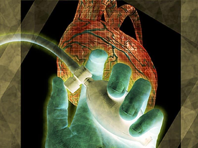 Facteurs de risque cardiovasculaire liés à un déclin cognitif plus rapide en milieu de vie