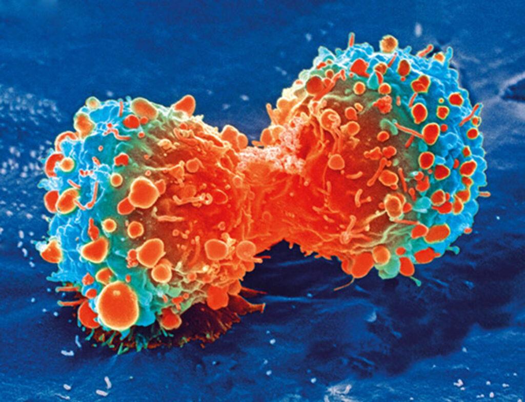 La plus grande étude de la génomique du cancer de la prostate chez les Noirs américains identifie des cibles pour les thérapies