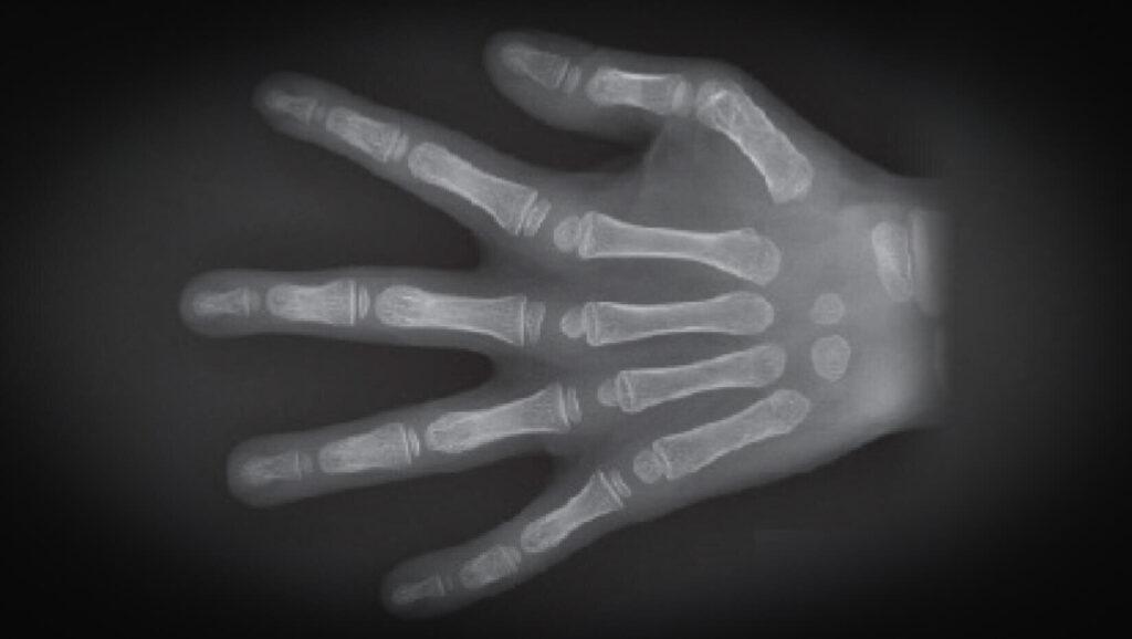 Talbot aide à identifier le gène musculaire qui, lorsqu'il est modifié, provoque une maladie articulaire